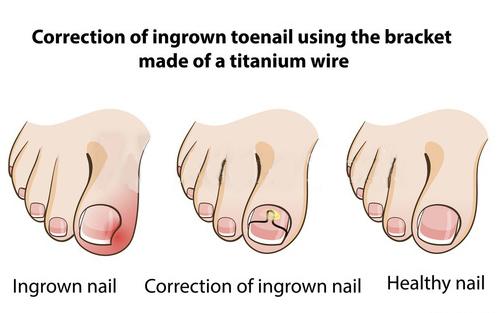 Как правильно подстригать ногти на ногах чтобы не врастали