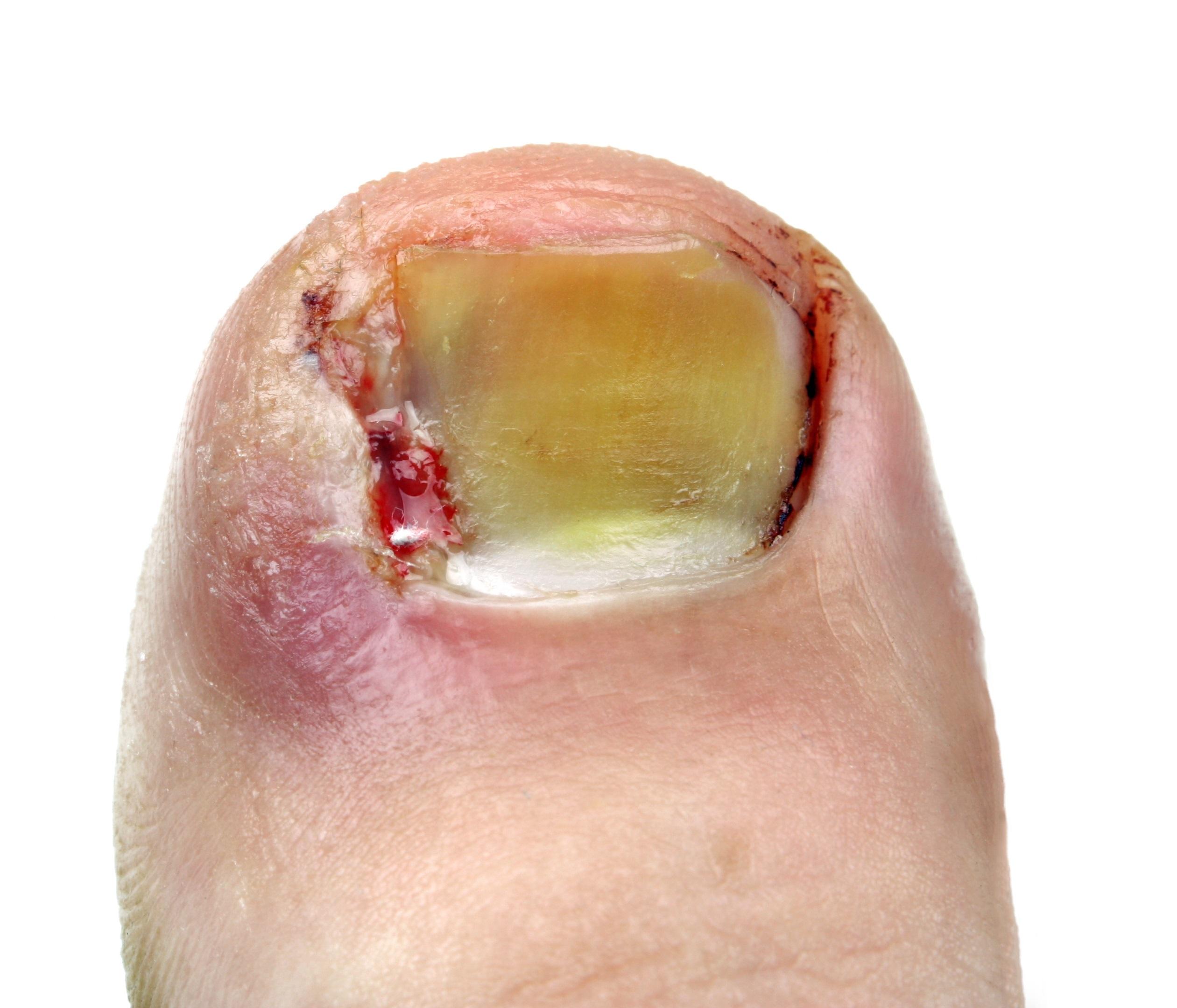 Ingrown Toenail Facts   Ingrown Toe Nail Expert
